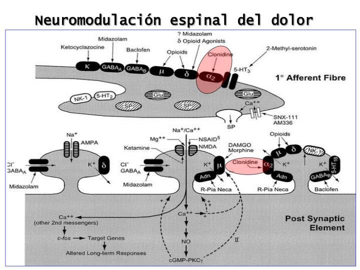 Neuromodulación espinal del dolor