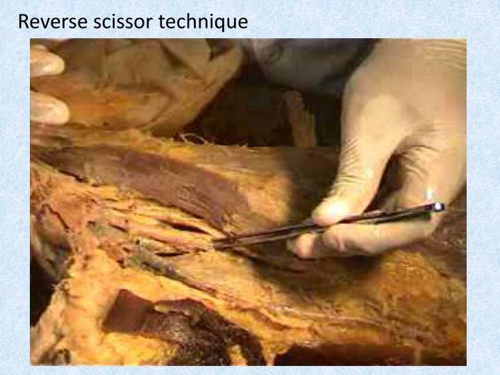Reverse scissor technique