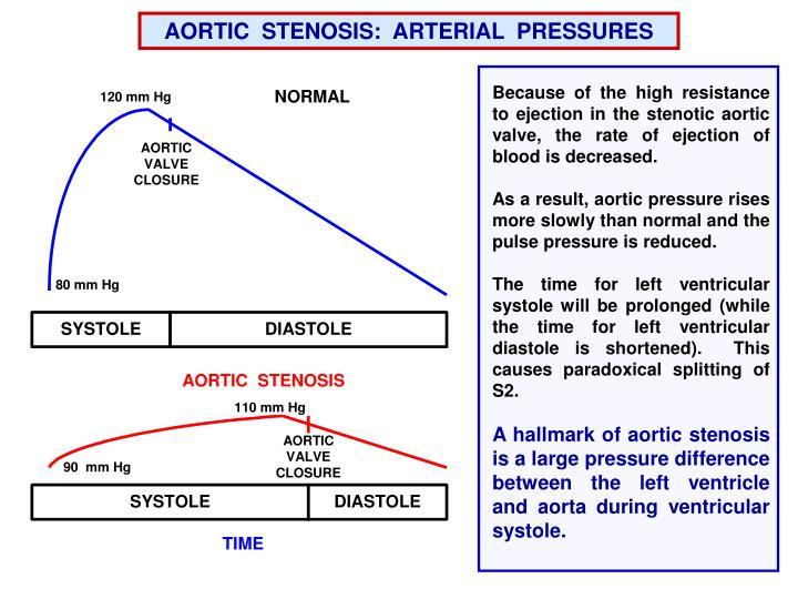 AORTIC  STENOSIS:  ARTERIAL  PRESSURES