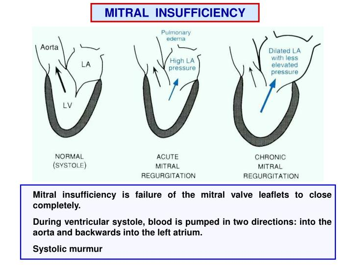 MITRAL  INSUFFICIENCY