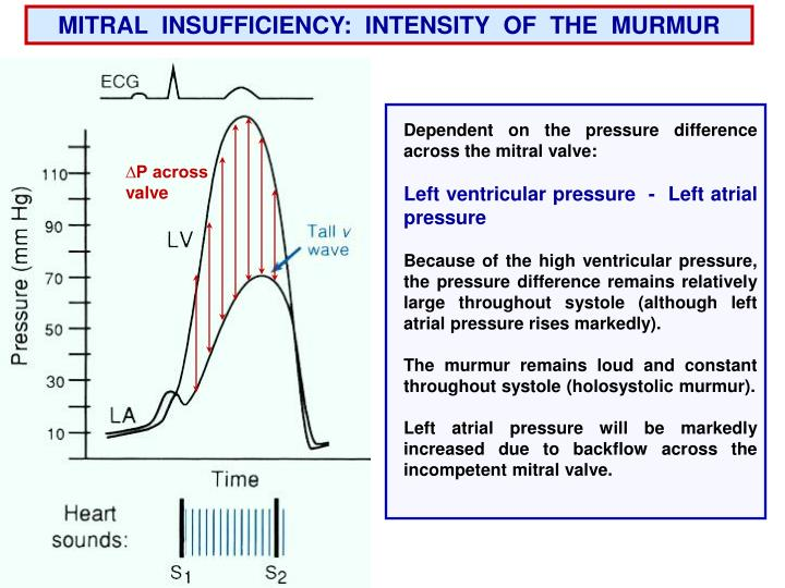 MITRAL  INSUFFICIENCY:  INTENSITY  OF  THE  MURMUR