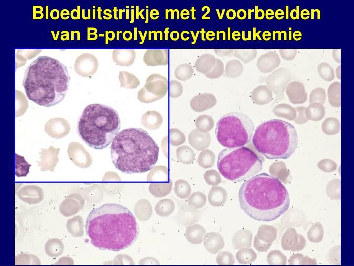 Bloeduitstrijkje met 2 voorbeelden van B-prolymfocytenleukemie