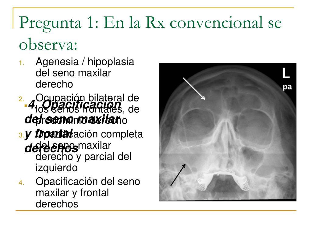 agenesia del seno esfenoidal derecho