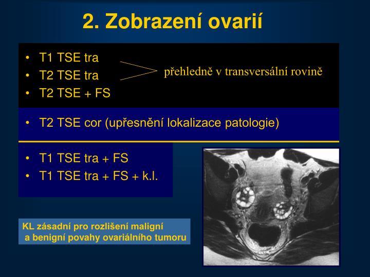 2. Zobrazení ovarií