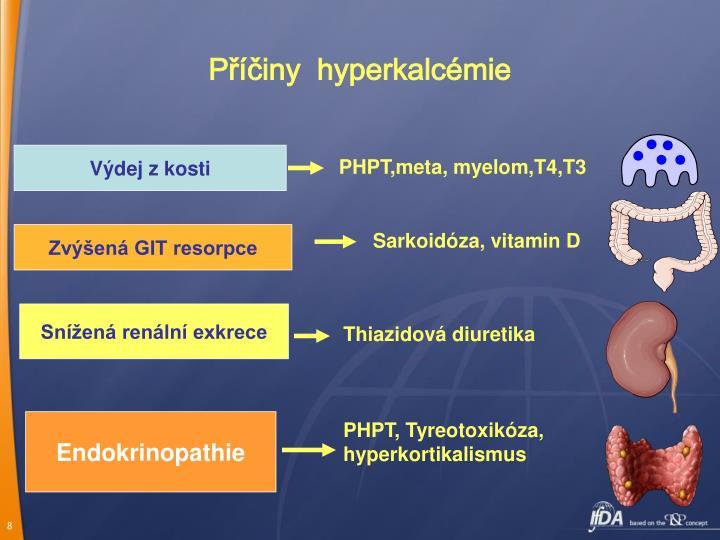 Příčiny  hyperkalcémie