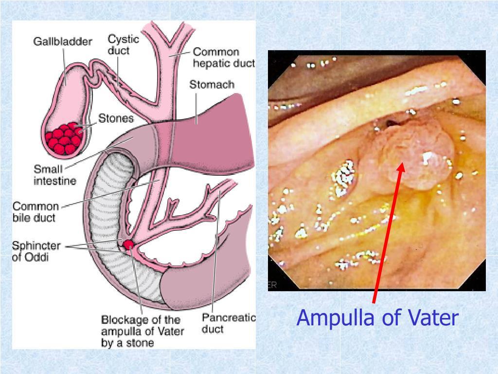 ampulla of vater - 960×720
