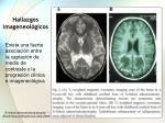 hallazgos imageneol gicos1