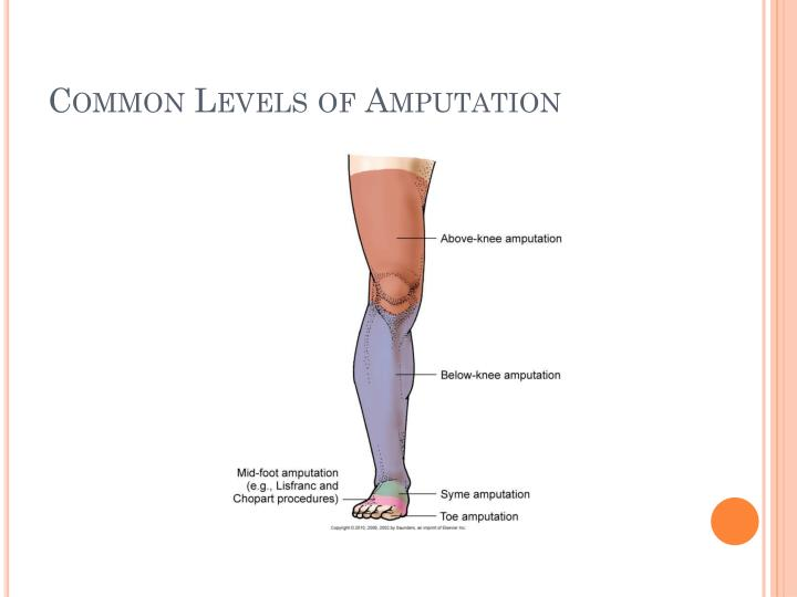 Common Levels of Amputation
