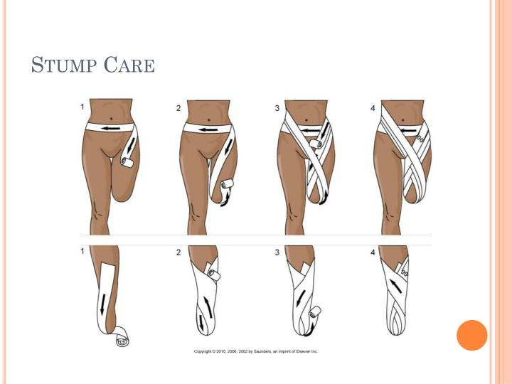 Stump Care