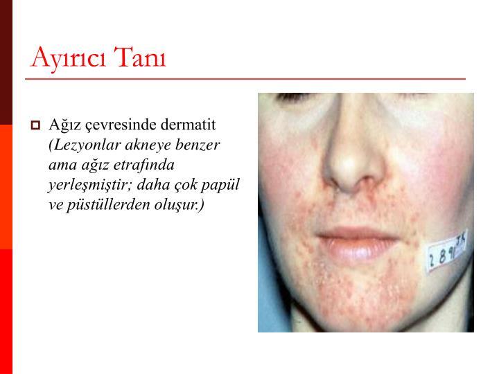 Ağız çevresinde dermatit
