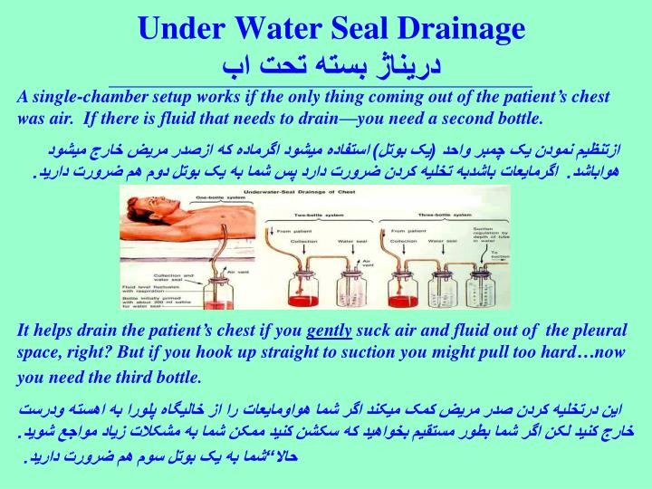 Under Water Seal Drainage