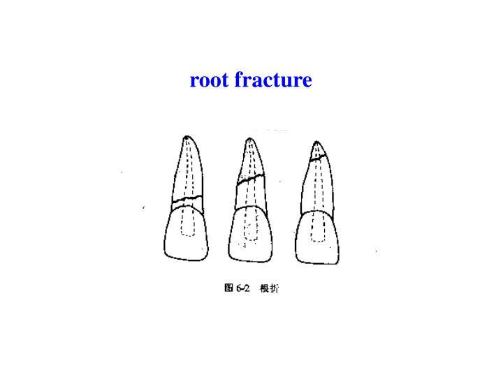 root fracture