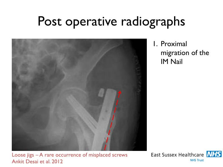 Post operative radiographs