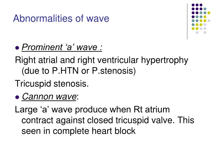 Abnormalities of wave