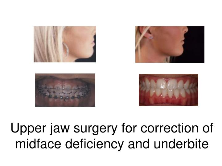 PPT - ORTHOGNATHIC JAW SURGERY & BIMAXILLARY SLEEP SURGERY ...