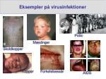 eksempler p virusinfektioner