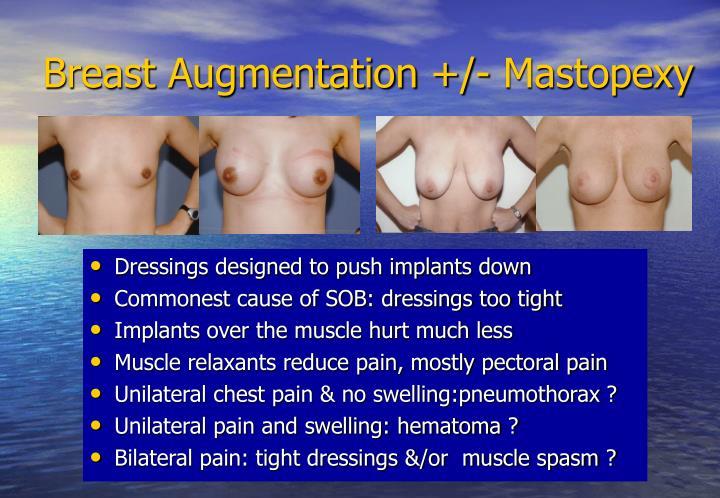 Breast Augmentation +/- Mastopexy