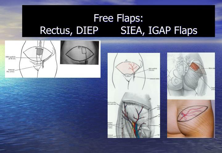 Free Flaps: