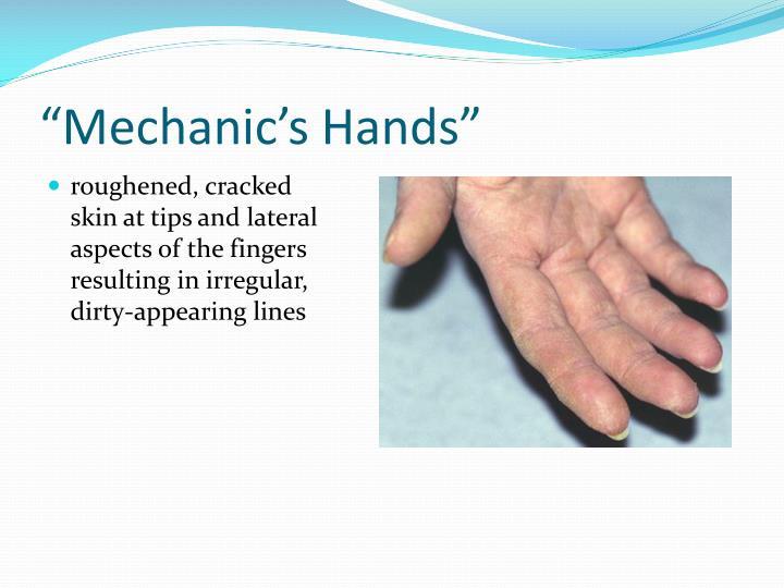 """""""Mechanic's Hands"""""""