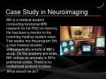 case study in neuroimaging