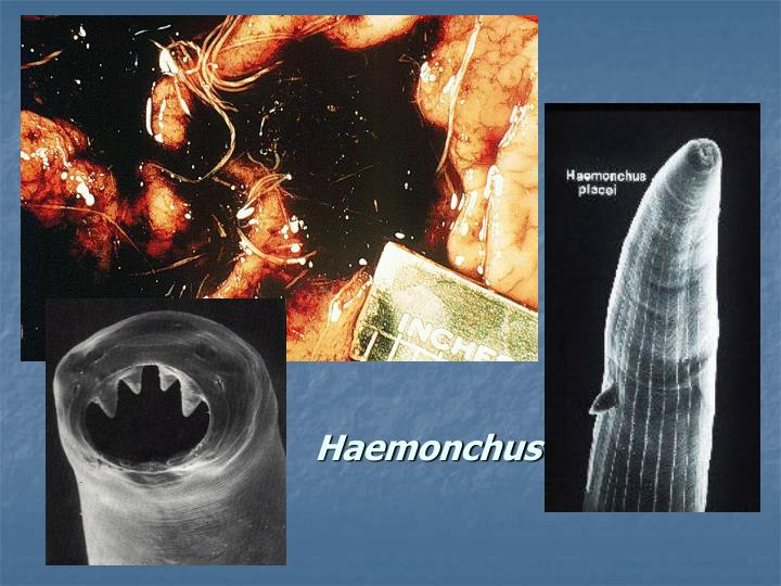 Haemonchus