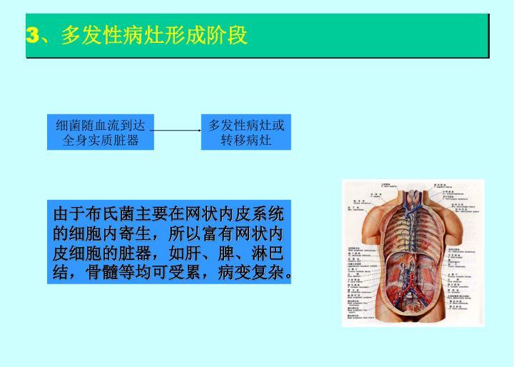 3、多发性病灶形成阶段
