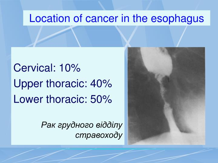 Location of cancer in the esophagus