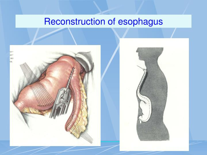 Reconstruction of esophagus