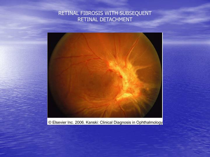 RETINAL FIBROSIS WITH SUBSEQUENT RETINAL DETACHMENT