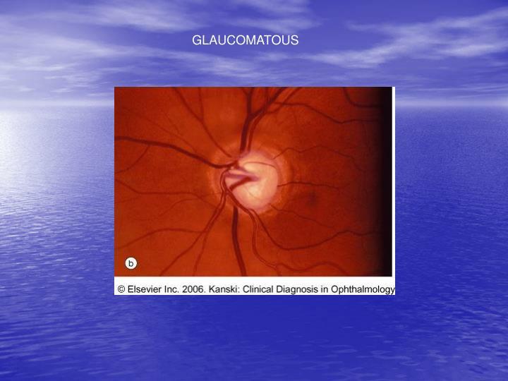 GLAUCOMATOUS