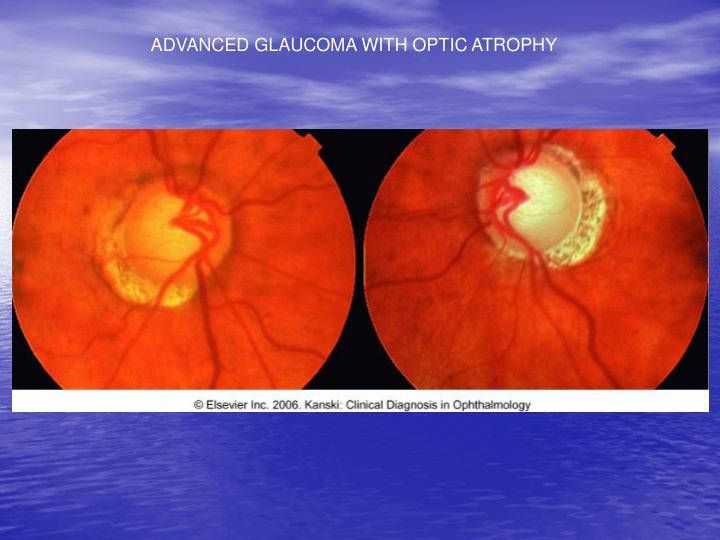 ADVANCED GLAUCOMA WITH OPTIC ATROPHY