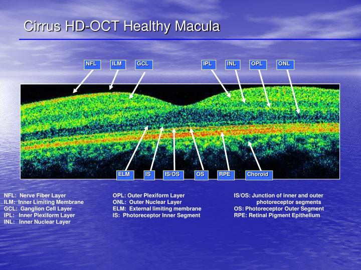 Cirrus HD-OCT Healthy Macula