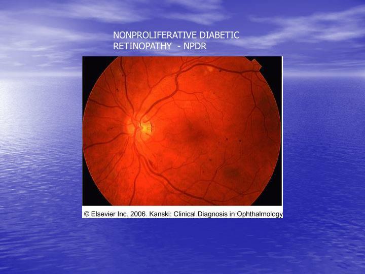 NONPROLIFERATIVE DIABETIC RETINOPATHY  - NPDR