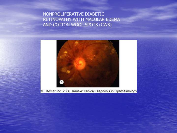 NONPROLIFERATIVE DIABETIC RETINOPATHY WITH MACULAR EDEMA AND COTTON WOOL SPOTS (CWS)