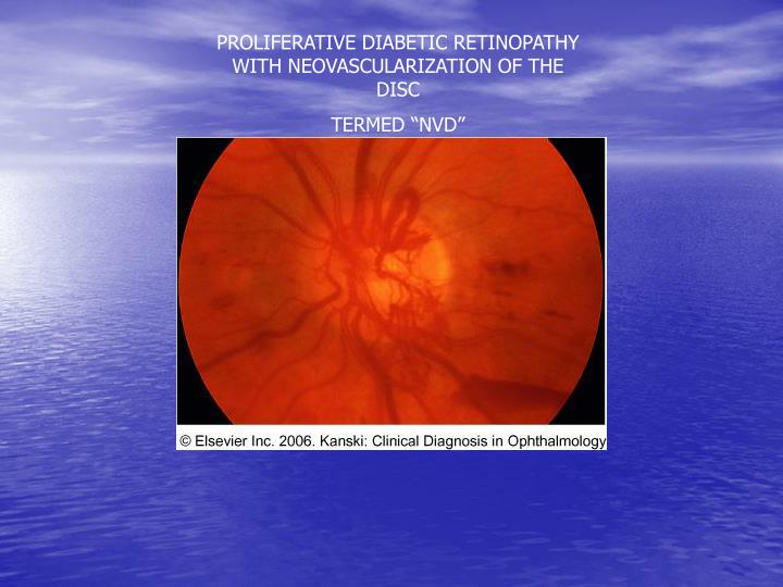 PROLIFERATIVE DIABETIC RETINOPATHY WITH NEOVASCULARIZATION OF THE DISC