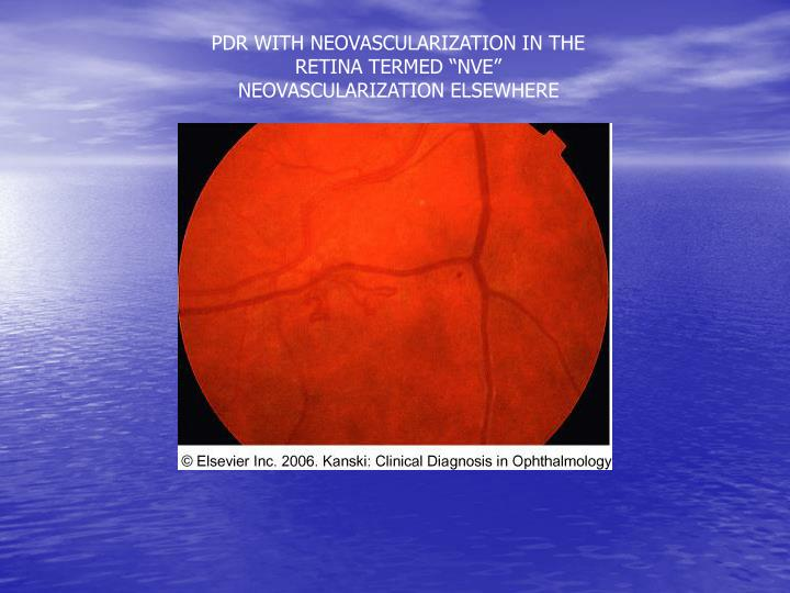 """PDR WITH NEOVASCULARIZATION IN THE RETINA TERMED """"NVE"""" NEOVASCULARIZATION ELSEWHERE"""