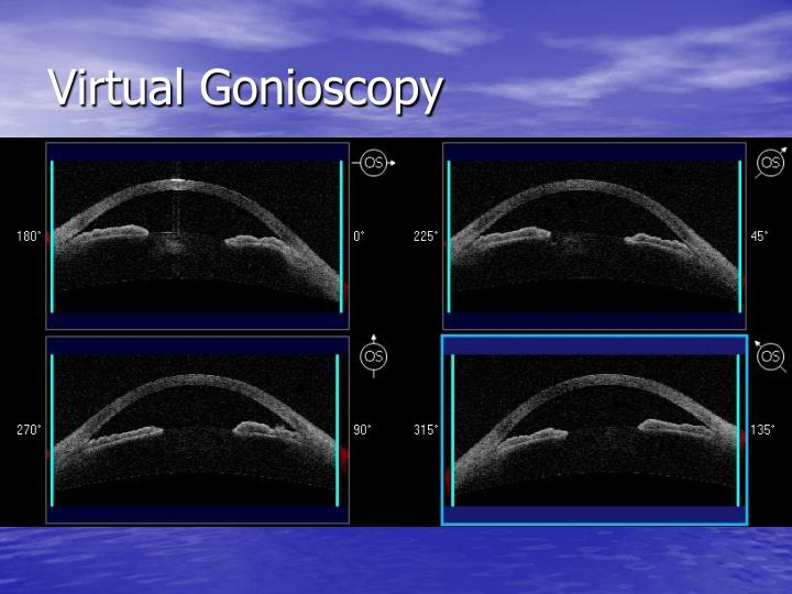 Virtual Gonioscopy
