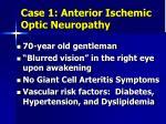 case 1 anterior ischemic optic neuropathy