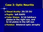 case 3 optic neuritis1