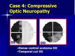 case 4 compressive optic neuropathy2