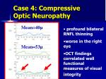 case 4 compressive optic neuropathy3