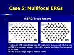 case 5 multifocal ergs