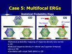 case 5 multifocal ergs1