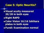 case 5 optic neuritis1