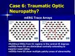 case 6 traumatic optic neuropathy7
