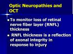 optic neuropathies and oct