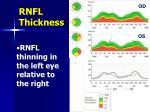 rnfl thickness1