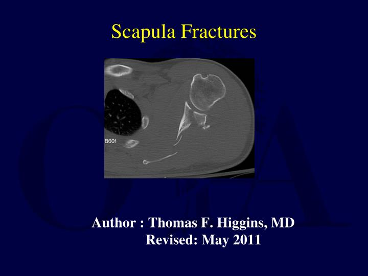 author thomas f higgins md revised may 2011 n.