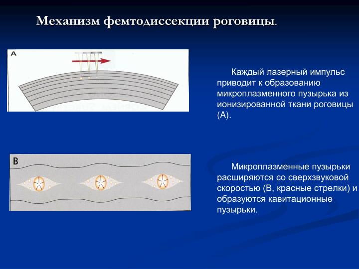 Механизм фемтодиссекции роговицы