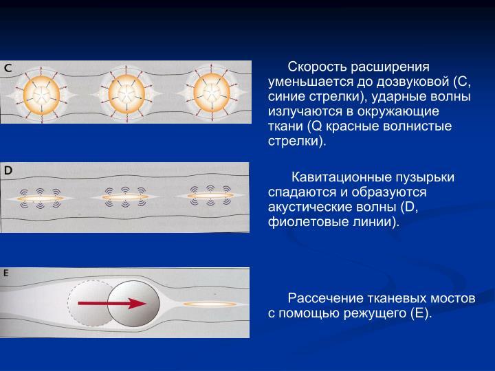 Скорость расширения уменьшается до дозвуковой (C, синие стрелки), ударные волны излучаются в окружающие ткани (Q красные волнистые стрелки).